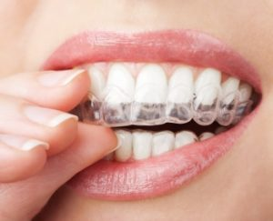 Lady with teeth whitening fixture in mouth